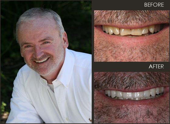 Older gentleman showing off his new veneers