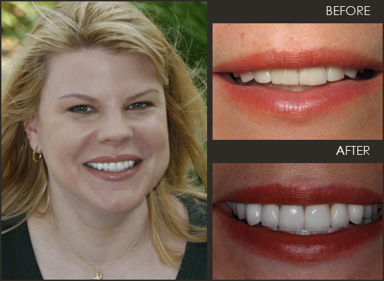 A lady that visited Toomin and Bieber to get her veneers.