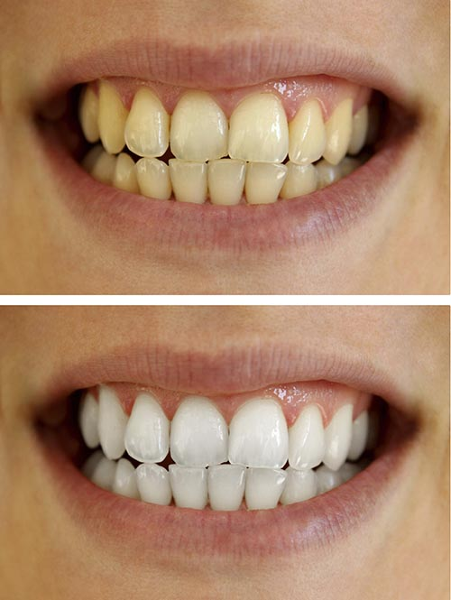 A patients teeth before and after using a teeth whitening product.
