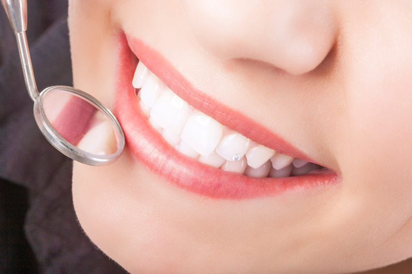 How Often Should You Have Dental Sealants Replaced?